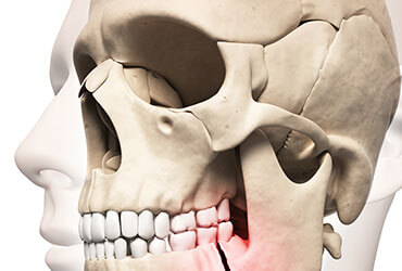 displaced Jaw or broken Jaw treatment in Hyderabad